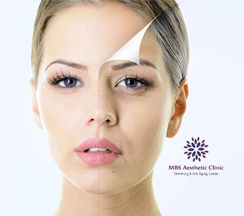 Paket Akupuntur Wajah dan Slimming dari MBS Aesthetic